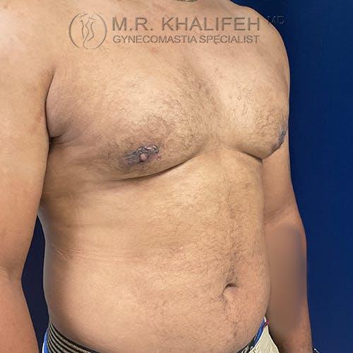 Gynecomastia Gallery - Patient 61120574 - Image 4