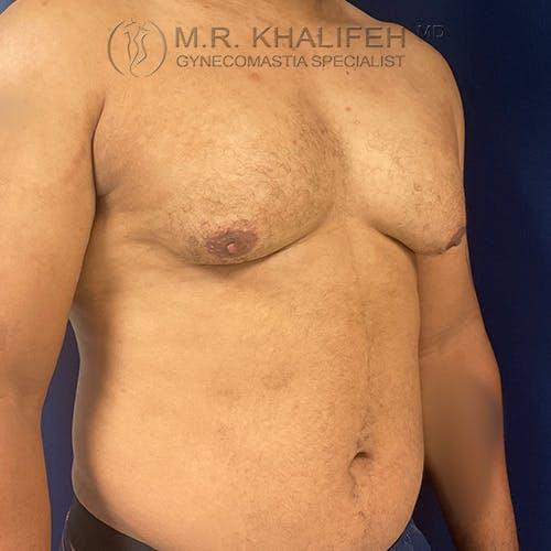 Gynecomastia Gallery - Patient 61120574 - Image 3