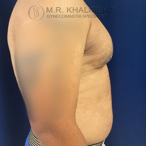 Gynecomastia Gallery - Patient 61120574 - Image 8