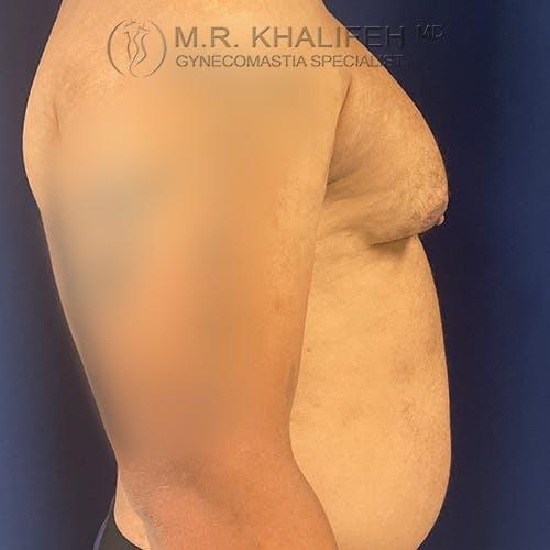 Gynecomastia Gallery - Patient 61120574 - Image 7