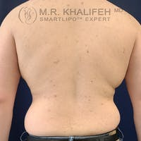Flank-Lower Back Liposuction Gallery - Patient 61120582 - Image 1