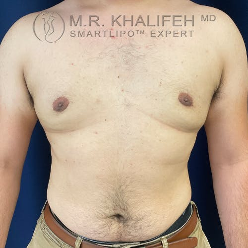 Male Liposuction Gallery - Patient 61120579 - Image 4