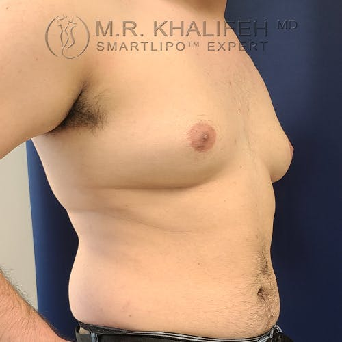 Male Liposuction Gallery - Patient 61120579 - Image 5