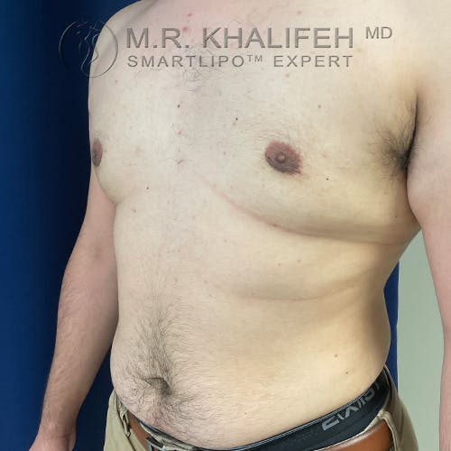 Male Liposuction Gallery - Patient 61120579 - Image 8