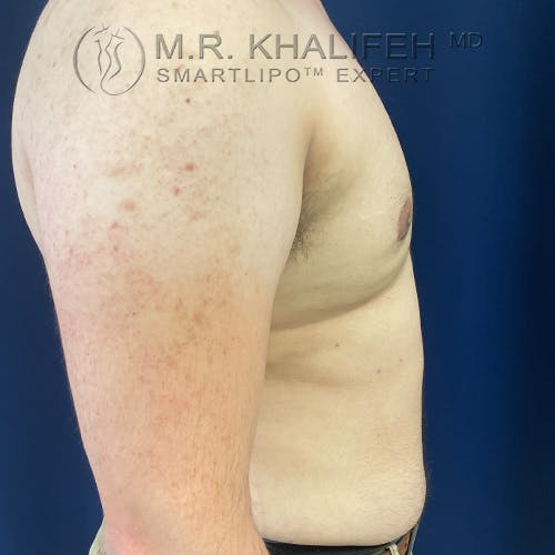Male Liposuction Gallery - Patient 61120579 - Image 10