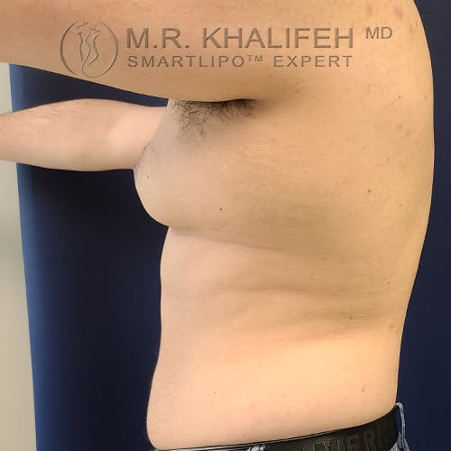 Male Liposuction Gallery - Patient 61120579 - Image 11