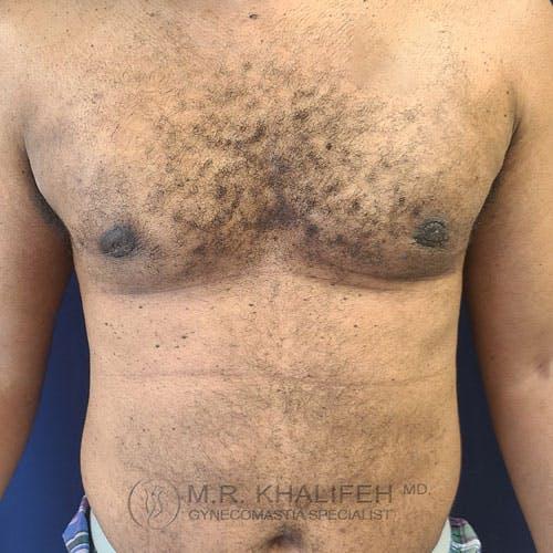 Gynecomastia Gallery - Patient 62576208 - Image 2