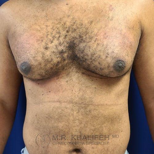 Gynecomastia Gallery - Patient 62576208 - Image 1