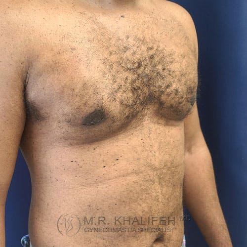 Gynecomastia Gallery - Patient 62576208 - Image 4