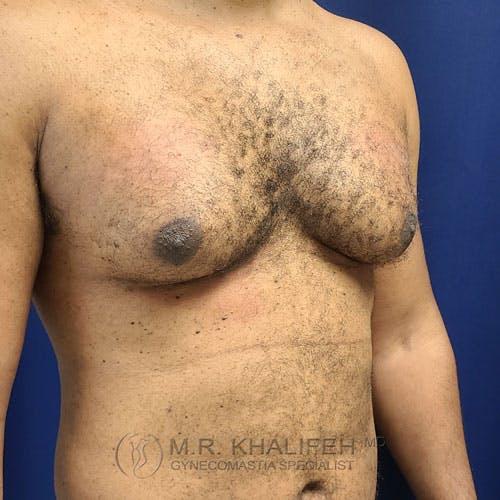 Gynecomastia Gallery - Patient 62576208 - Image 3