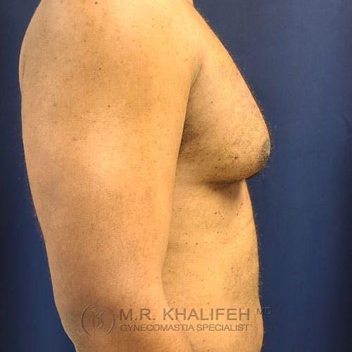 Gynecomastia Gallery - Patient 62576208 - Image 5
