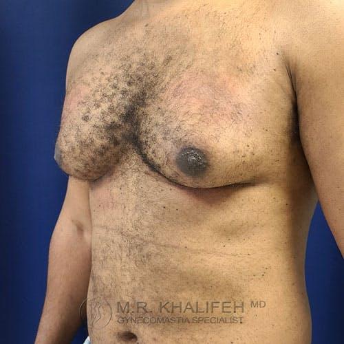 Gynecomastia Gallery - Patient 62576208 - Image 7