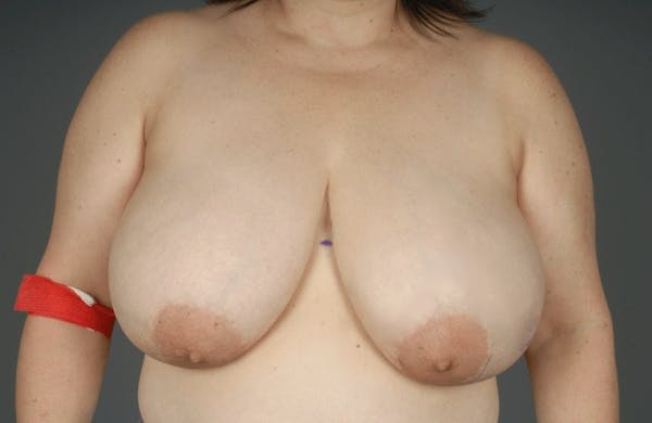 Breast Reduction Gallery - Patient 3689091 - Image 1