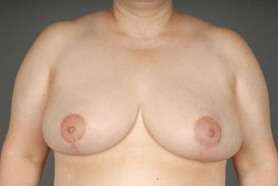 Breast Reduction Gallery - Patient 3689091 - Image 2