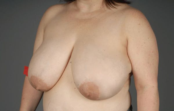 Breast Reduction Gallery - Patient 3689091 - Image 3