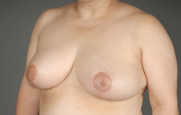 Breast Reduction Gallery - Patient 3689091 - Image 4