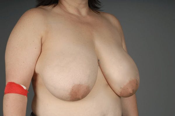 Breast Reduction Gallery - Patient 3689091 - Image 5