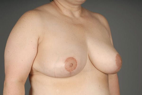 Breast Reduction Gallery - Patient 3689091 - Image 6