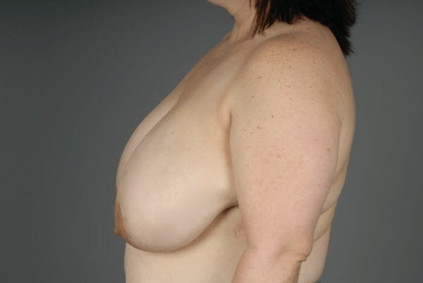 Breast Reduction Gallery - Patient 3689091 - Image 7