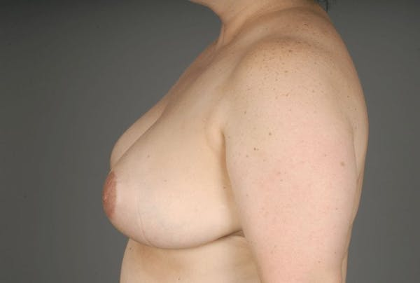 Breast Reduction Gallery - Patient 3689091 - Image 8