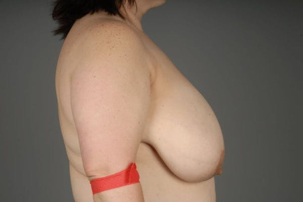 Breast Reduction Gallery - Patient 3689091 - Image 9