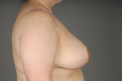 Breast Reduction Gallery - Patient 3689091 - Image 10