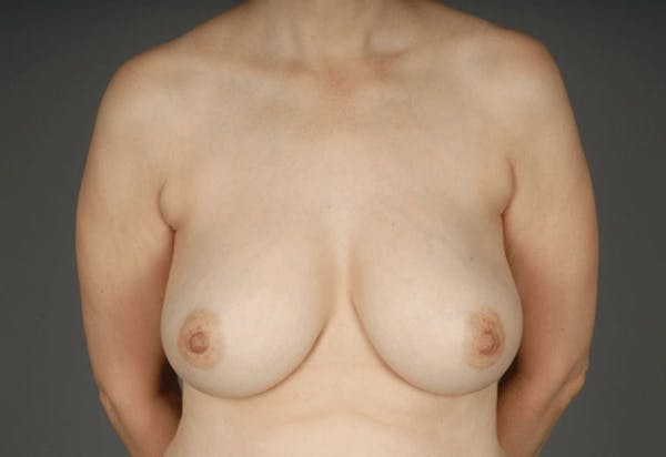Breast Reduction Gallery - Patient 3689092 - Image 1