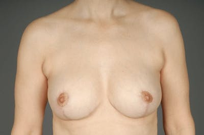 Breast Reduction Gallery - Patient 3689092 - Image 2