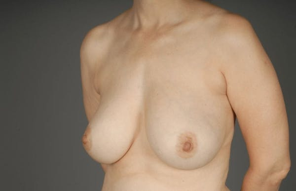 Breast Reduction Gallery - Patient 3689092 - Image 3