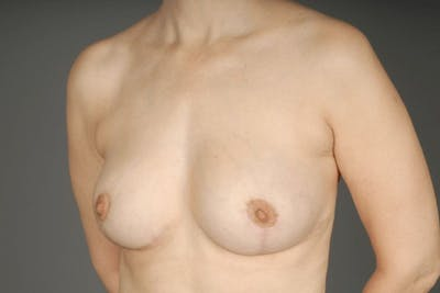 Breast Reduction Gallery - Patient 3689092 - Image 4