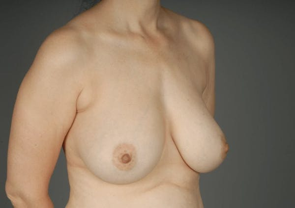 Breast Reduction Gallery - Patient 3689092 - Image 5