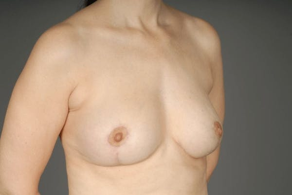 Breast Reduction Gallery - Patient 3689092 - Image 6