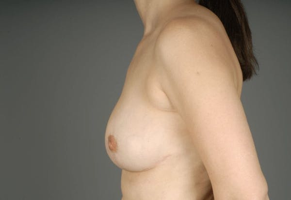 Breast Reduction Gallery - Patient 3689092 - Image 8