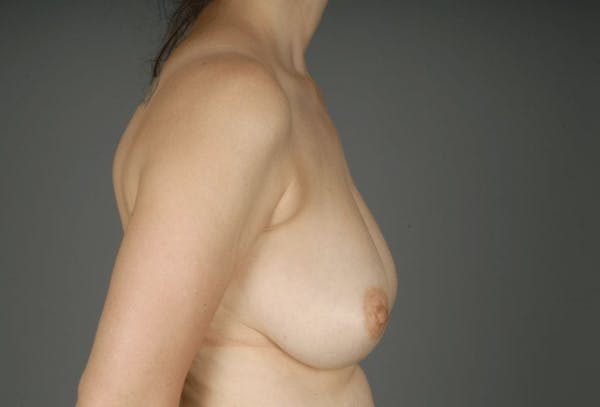 Breast Reduction Gallery - Patient 3689092 - Image 9