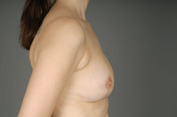 Breast Reduction Gallery - Patient 3689092 - Image 10