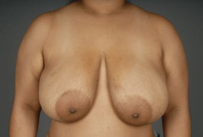 Breast Reduction Gallery - Patient 3689093 - Image 1