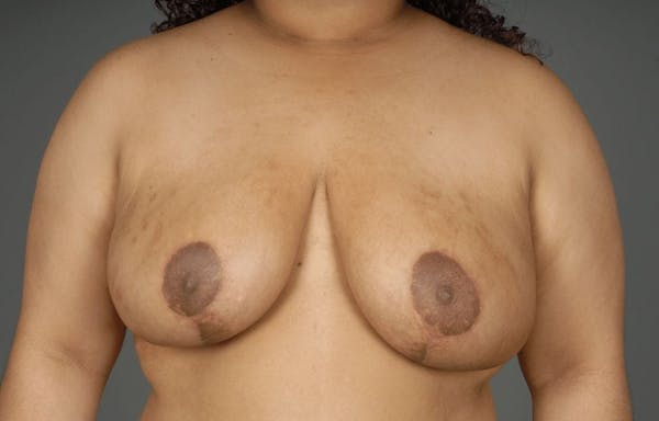 Breast Reduction Gallery - Patient 3689093 - Image 2