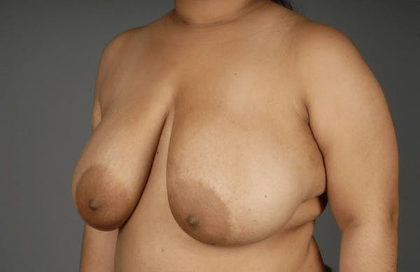 Breast Reduction Gallery - Patient 3689093 - Image 3