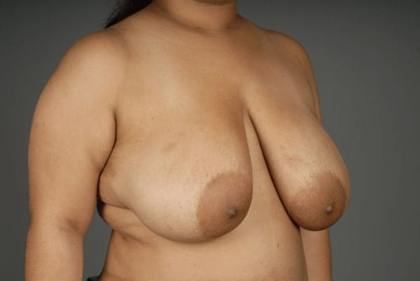 Breast Reduction Gallery - Patient 3689093 - Image 5