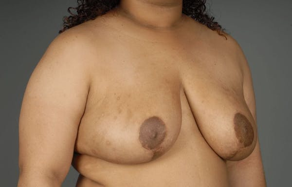 Breast Reduction Gallery - Patient 3689093 - Image 6