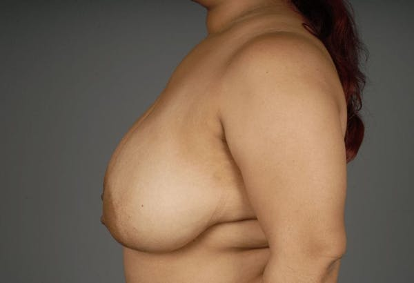 Breast Reduction Gallery - Patient 3689093 - Image 7