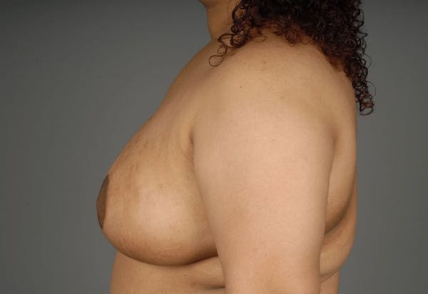 Breast Reduction Gallery - Patient 3689093 - Image 8