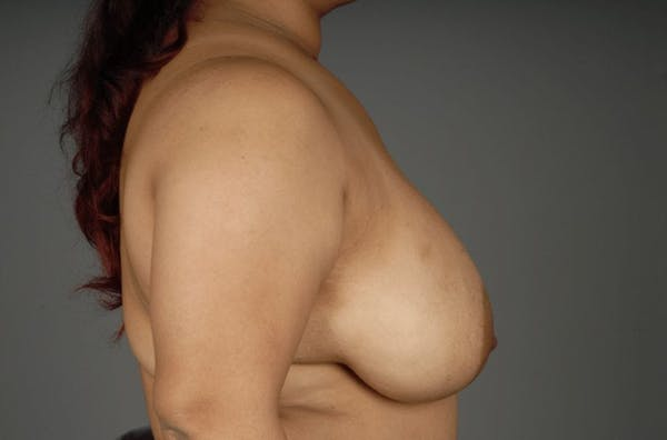 Breast Reduction Gallery - Patient 3689093 - Image 9