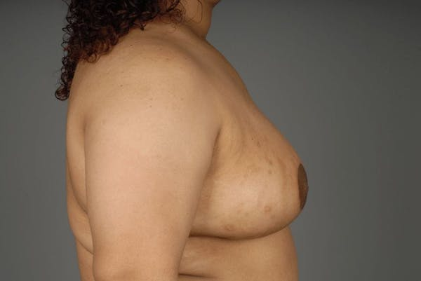 Breast Reduction Gallery - Patient 3689093 - Image 10
