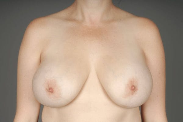 Implant Removal + Lift Gallery - Patient 3689097 - Image 1