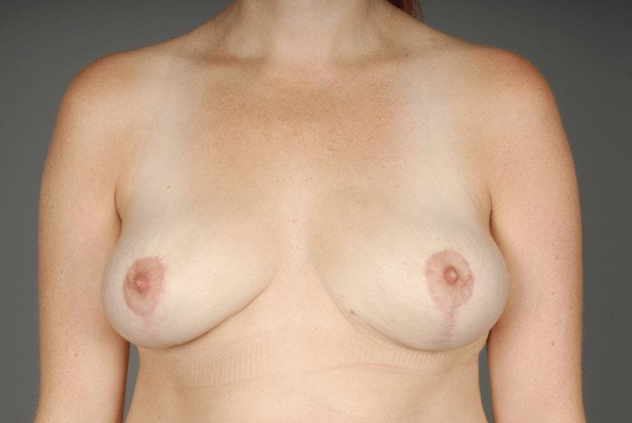 Breast Implant Removal results in Beverly Hills at Zampell Plastic Surgery