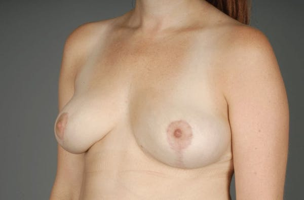 Implant Removal + Lift Gallery - Patient 3689097 - Image 4