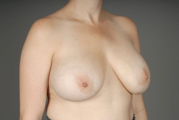 Implant Removal + Lift Gallery - Patient 3689097 - Image 5