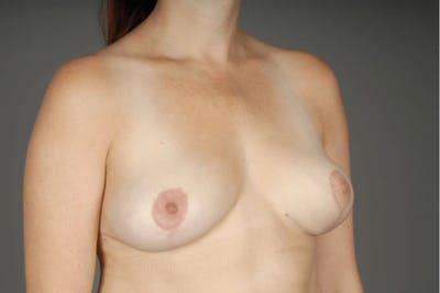 Implant Removal + Lift Gallery - Patient 3689097 - Image 6