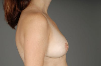 Implant Removal + Lift Gallery - Patient 3689097 - Image 10
